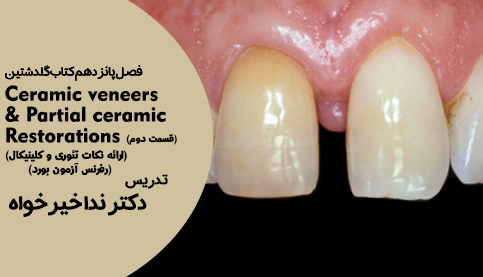 Ceramic Veneers & Partial Ceramic Restorations فصل 15 گلدشتین-قسمت دوم
