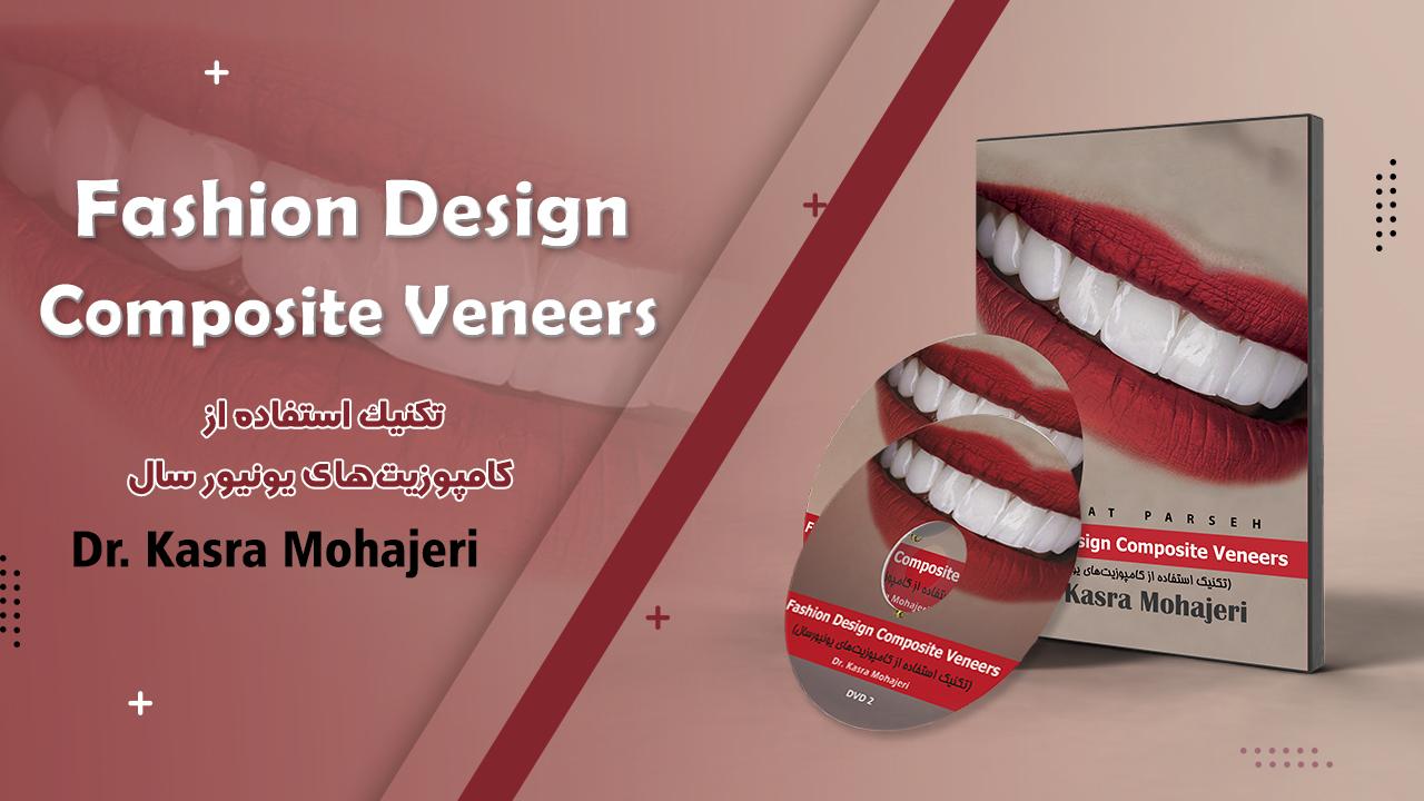 Fashion Design Composite Veneers (تکنیک استفاده از کامپوزیتهای یونیورسال)