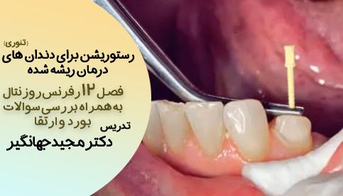 رسـتوریشن بـــرای دندانهای درمـان ریـــــشه شده(فصل ۱۲ روزنتال _ به همراه بررسی سوالات بورد و ارتقا)