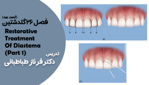 فصل26گلدشتینRestorative Treatment Of Diastema ( part1 )